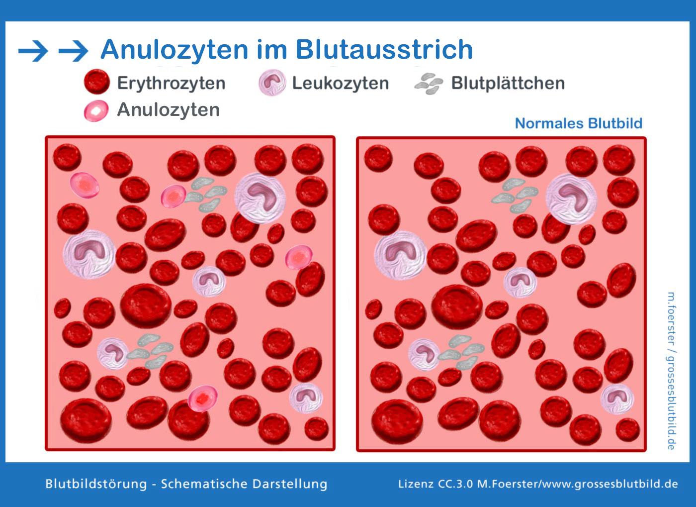 Anulozyt