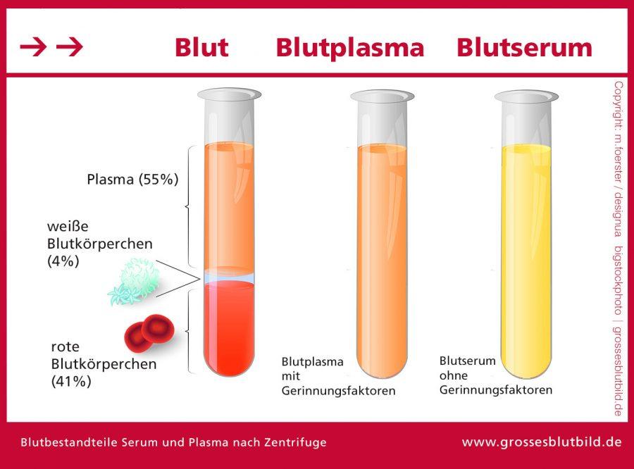 Blut-Aufbereitung