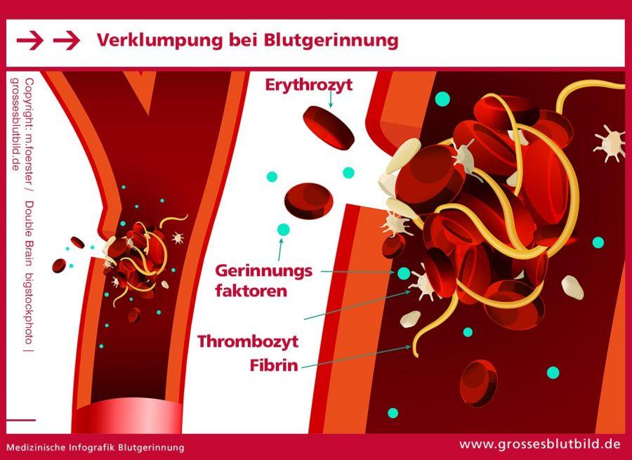 Blutgerinnung-Verklumpung