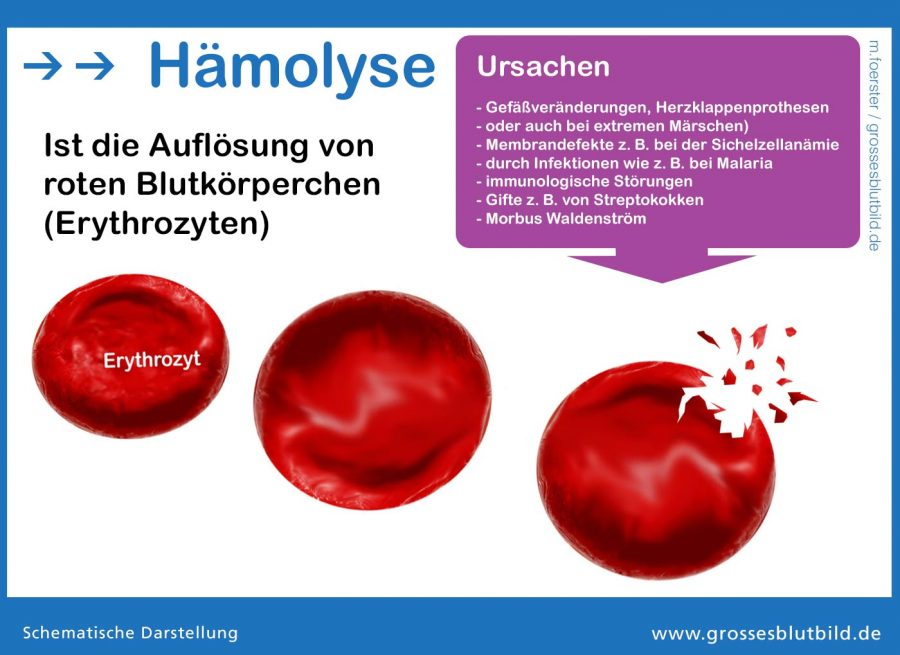 Haemolyse Infografik