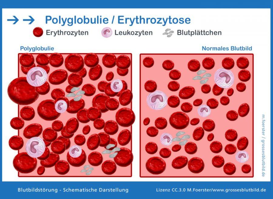 Polyglobulie-Erythrozytose
