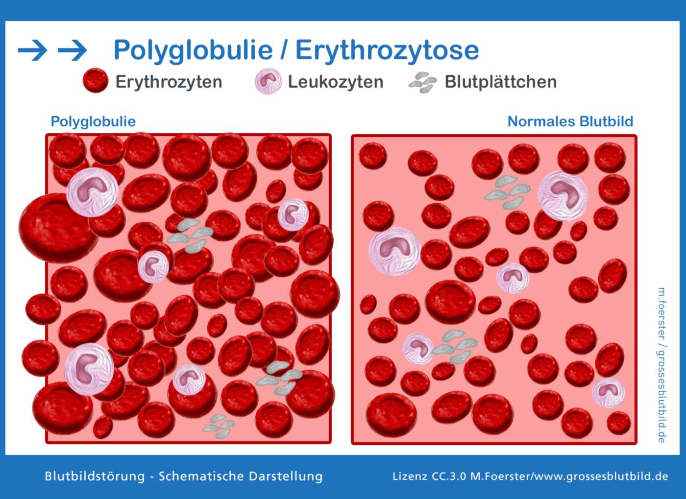 Polyglobulie