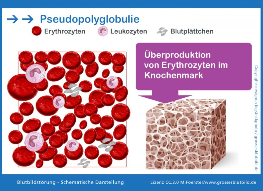 Pseudopolyglobulie