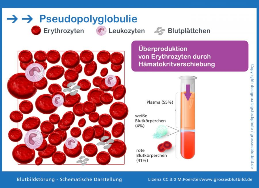Pseudopolyglobulie-Haematokrit-Verschiebung
