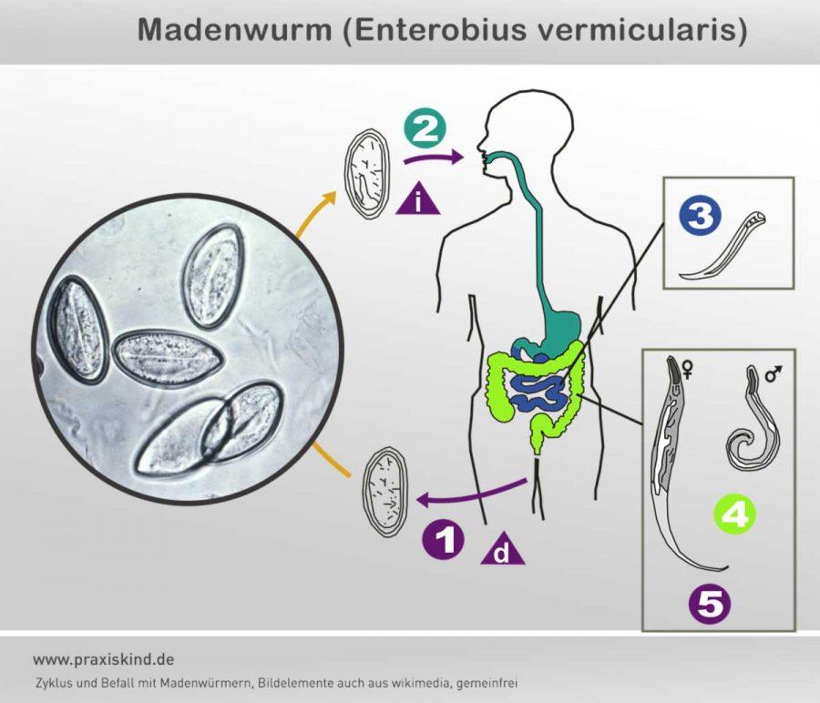 madenwurm-befall-zyklus